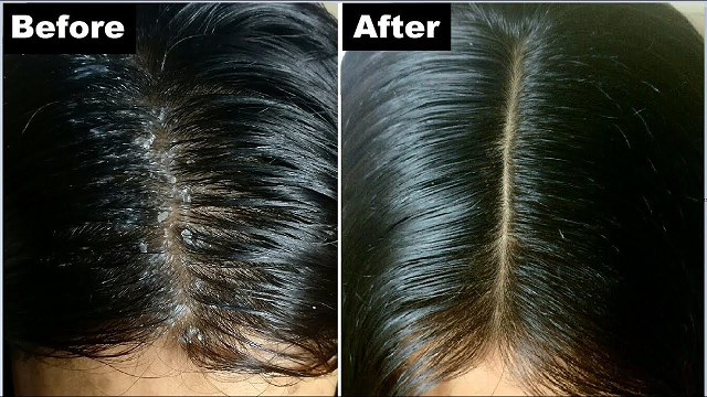 Dandruff Treatment in Andheri